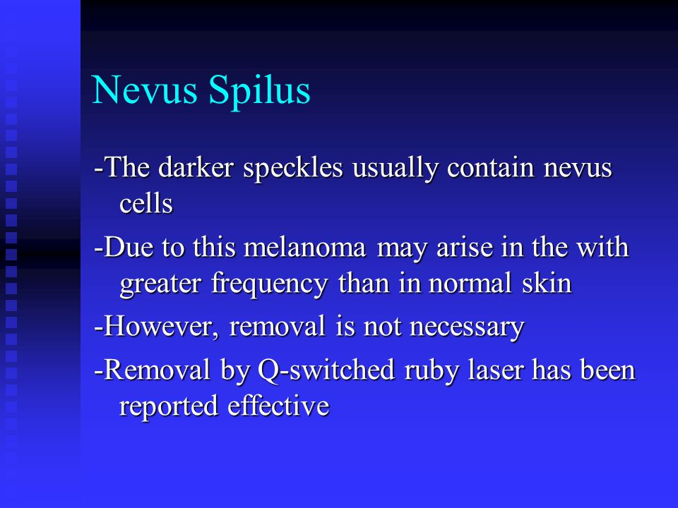 Nevus Spilus -The darker speckles usually contain nevus cells
