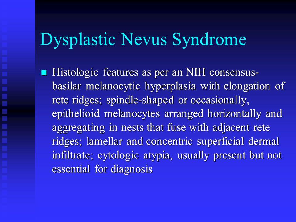 Dysplastic Nevus Syndrome