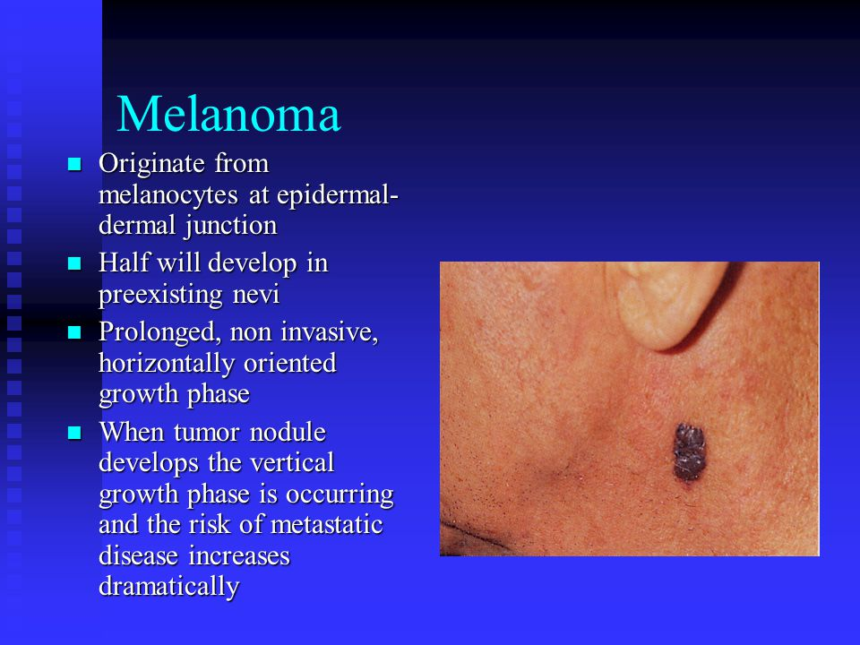 Melanoma Originate from melanocytes at epidermal-dermal junction