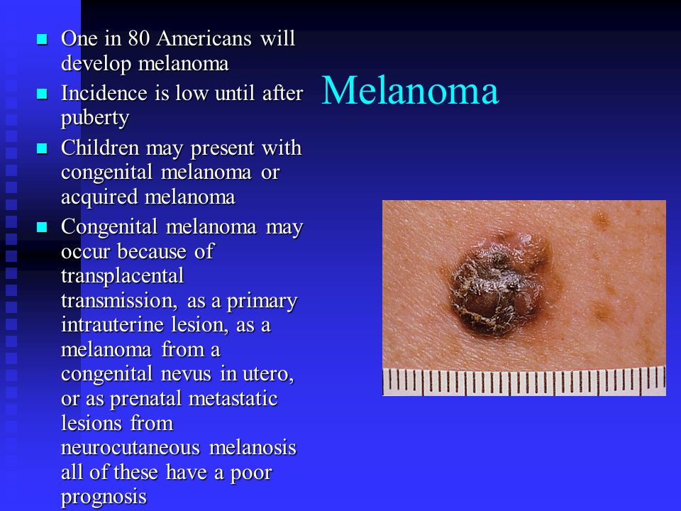 Melanoma One in 80 Americans will develop melanoma