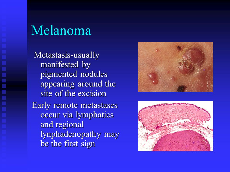 Melanoma Metastasis-usually manifested by pigmented nodules appearing around the site of the excision.