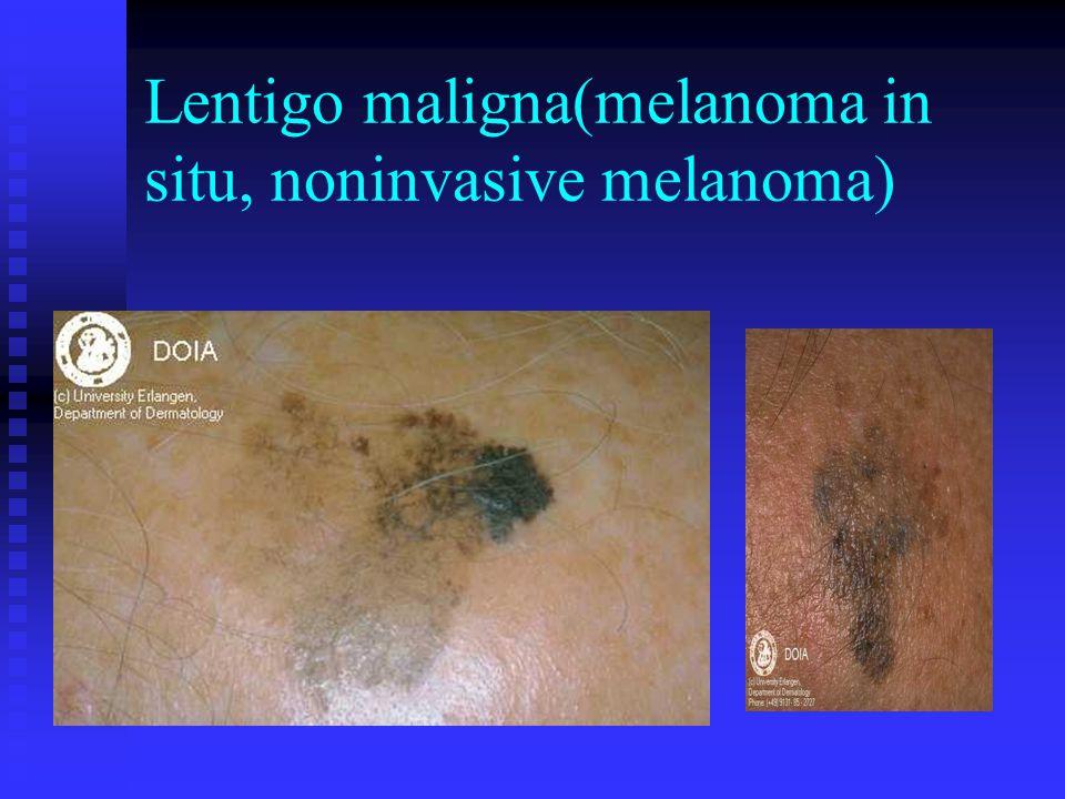 Lentigo maligna(melanoma in situ, noninvasive melanoma)