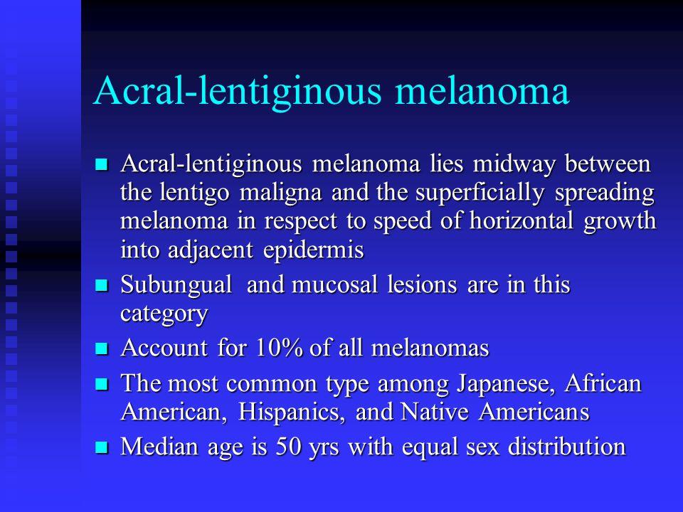 Acral-lentiginous melanoma