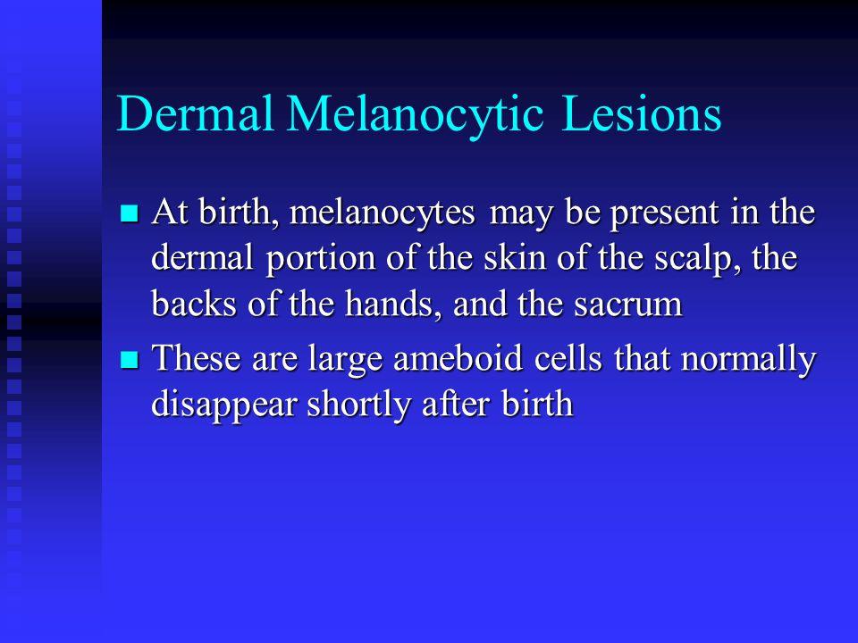 Dermal Melanocytic Lesions