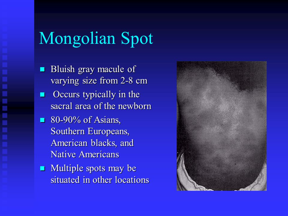 Mongolian Spot Bluish gray macule of varying size from 2-8 cm