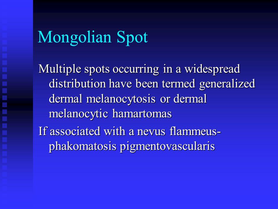 Mongolian Spot