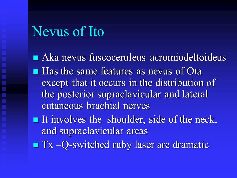 Nevus of Ito Aka nevus fuscoceruleus acromiodeltoideus