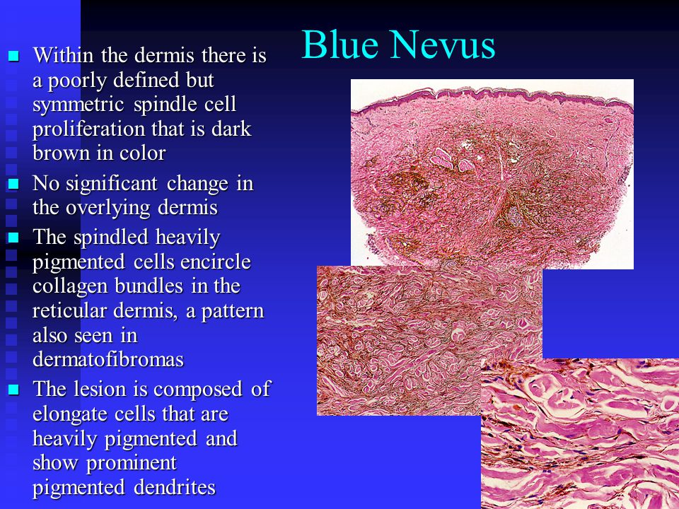 Blue Nevus Within the dermis there is a poorly defined but symmetric spindle cell proliferation that is dark brown in color.