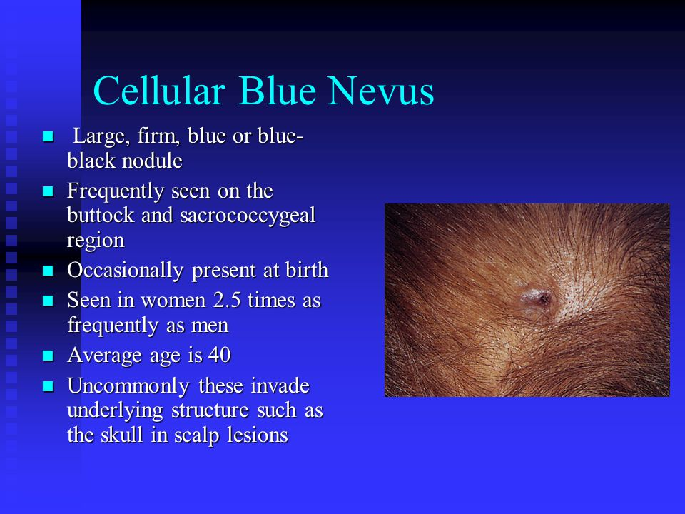 Cellular Blue Nevus Large, firm, blue or blue-black nodule