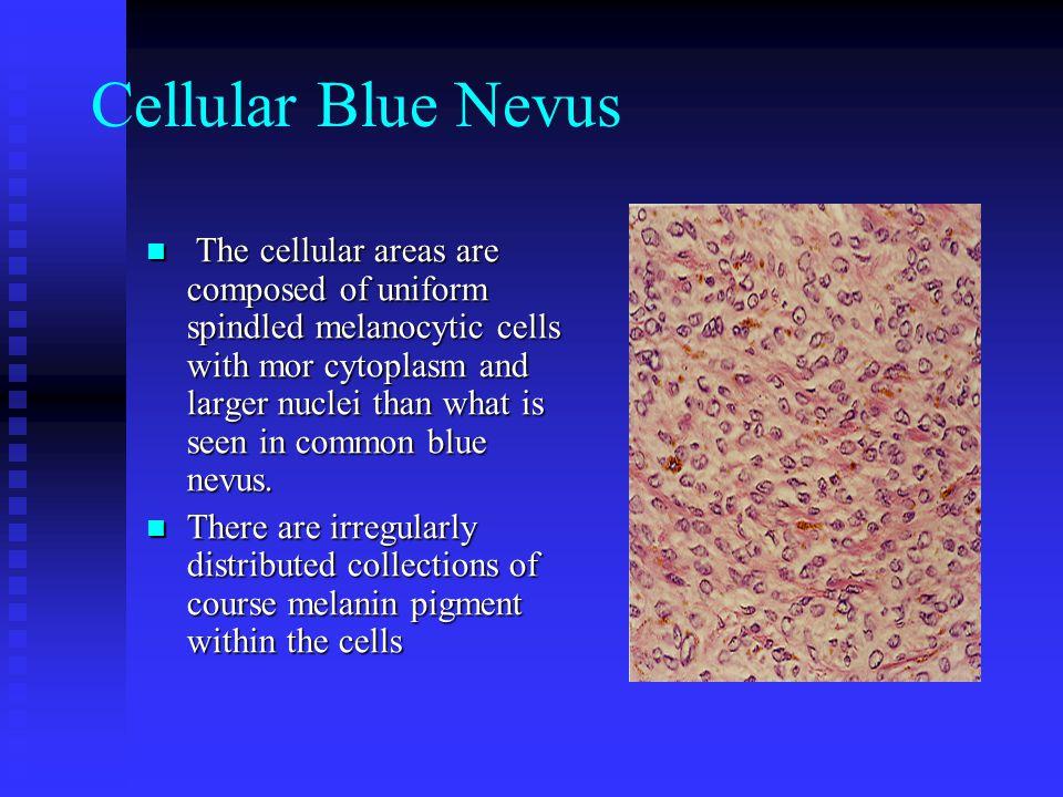 Cellular Blue Nevus