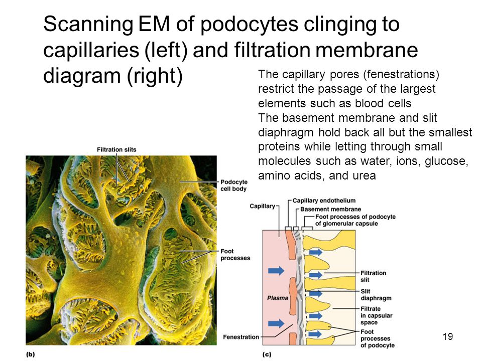 Scanning EM of podocytes clinging to capillaries (left) and filtration membrane diagram (right)