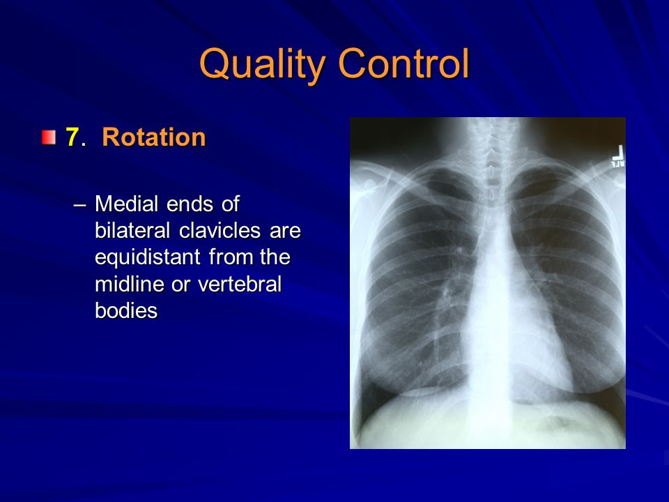 Quality Control 7. Rotation