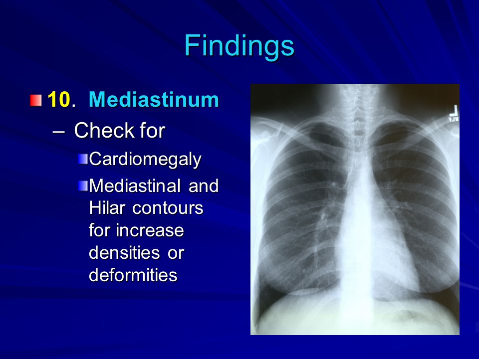 Findings 10. Mediastinum Check for Cardiomegaly