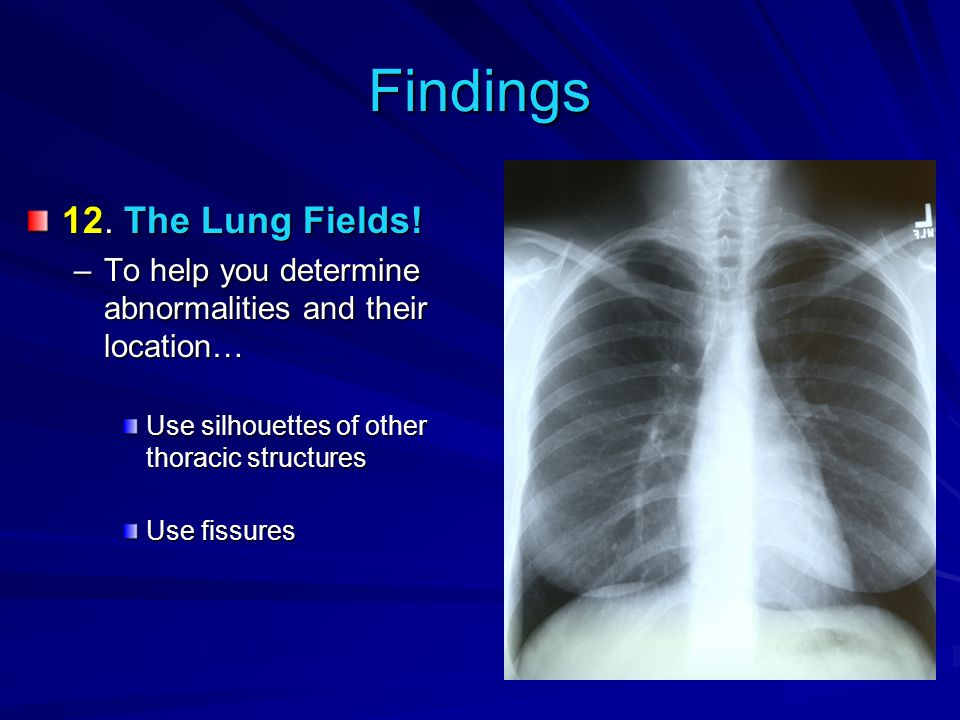 Findings 12. The Lung Fields!