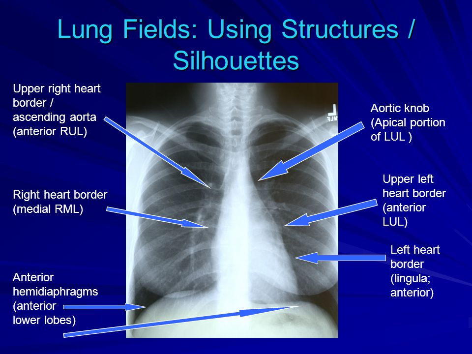 Lung Fields: Using Structures / Silhouettes