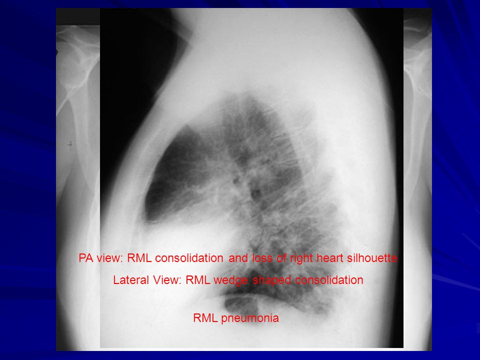 PA view: RML consolidation and loss of right heart silhouette