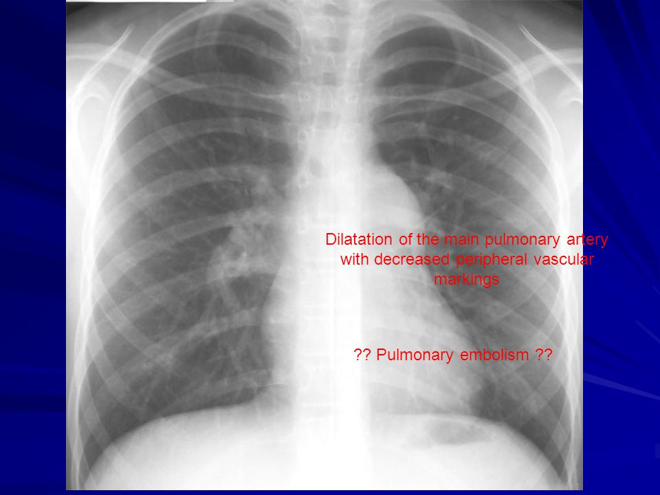 Dilatation of the main pulmonary artery with decreased peripheral vascular markings