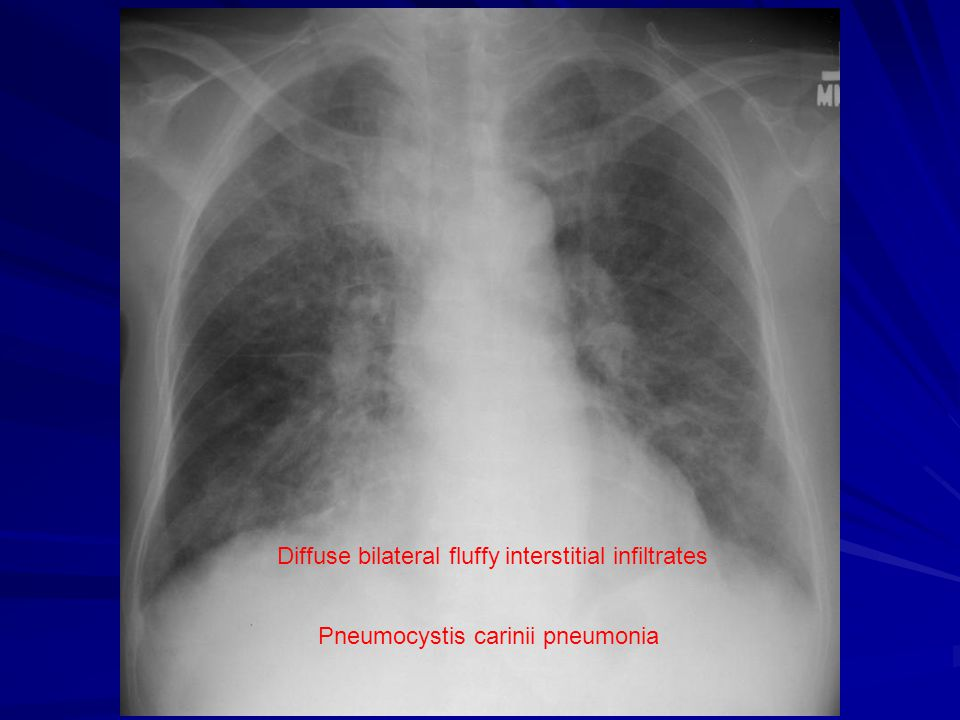Diffuse bilateral fluffy interstitial infiltrates