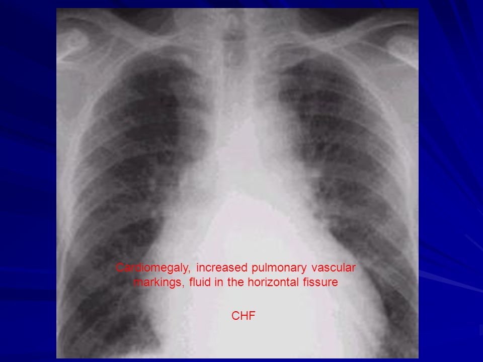 Cardiomegaly and pulmonary congestion with fluid in horizontal fissure.