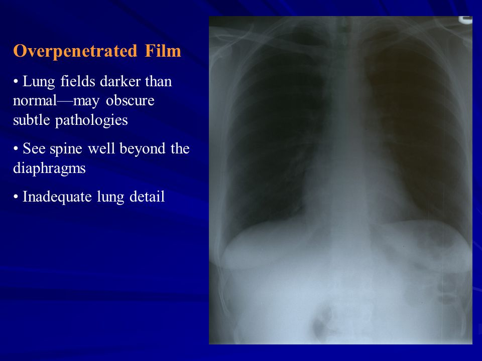 Overpenetrated Film Lung fields darker than normal—may obscure subtle pathologies. See spine well beyond the diaphragms.
