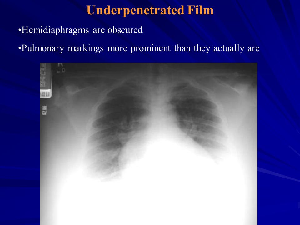 Underpenetrated Film Hemidiaphragms are obscured