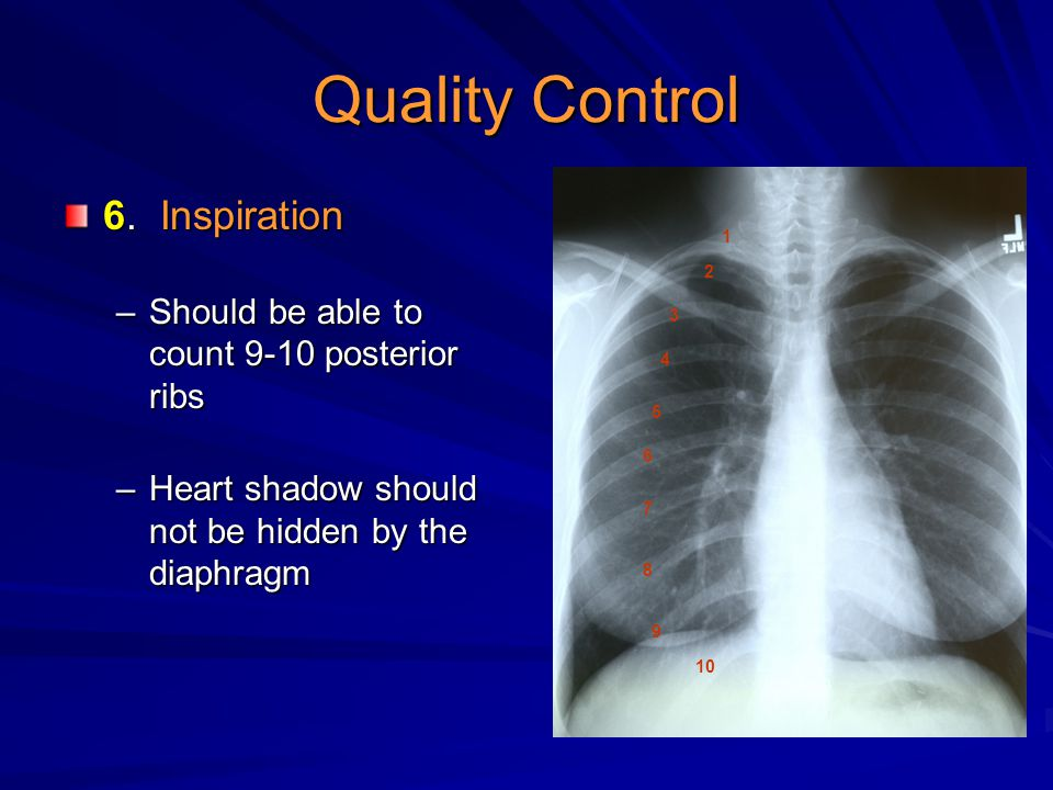 Quality Control 6. Inspiration