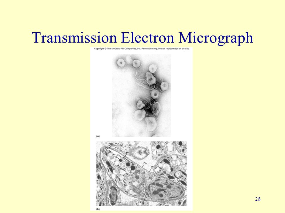 Transmission Electron Micrograph