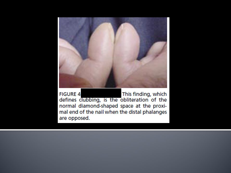 Clubbing • The angle of the base of the nail is greater than the. normal 160°. The proximal nail fold has a spongy feel.