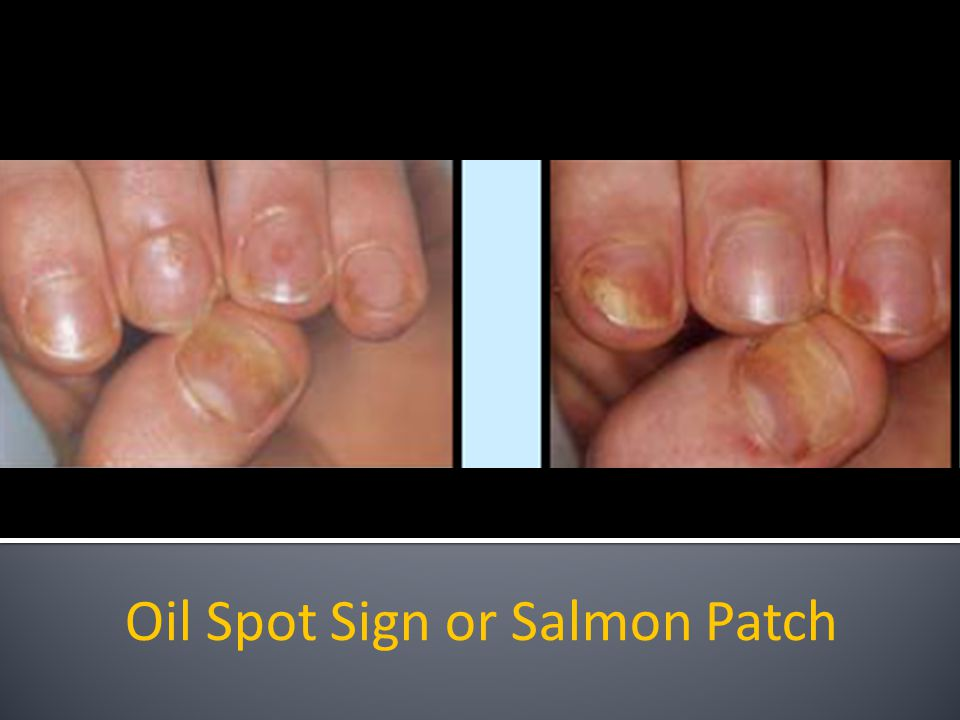 Oil Spot Sign or Salmon Patch