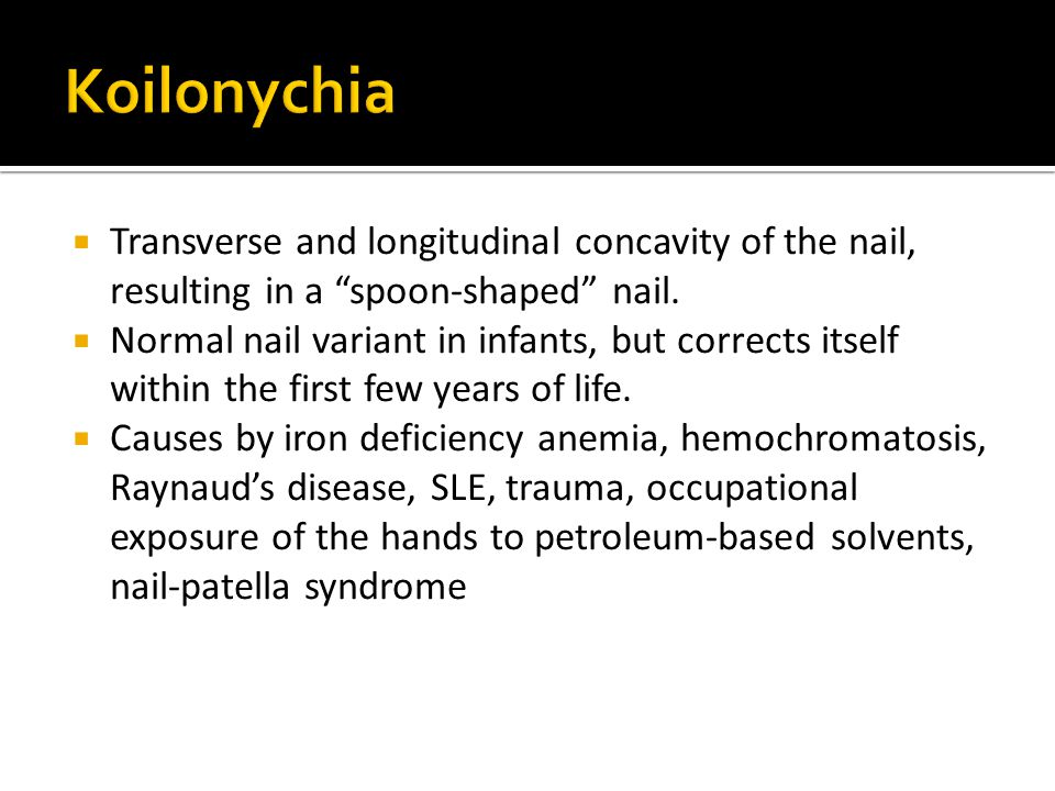 Koilonychia Transverse and longitudinal concavity of the nail, resulting in a spoon-shaped nail.