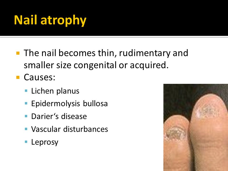 Nail atrophy The nail becomes thin, rudimentary and smaller size congenital or acquired. Causes: Lichen planus.