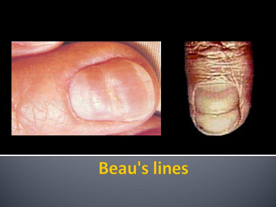 Beau s lines