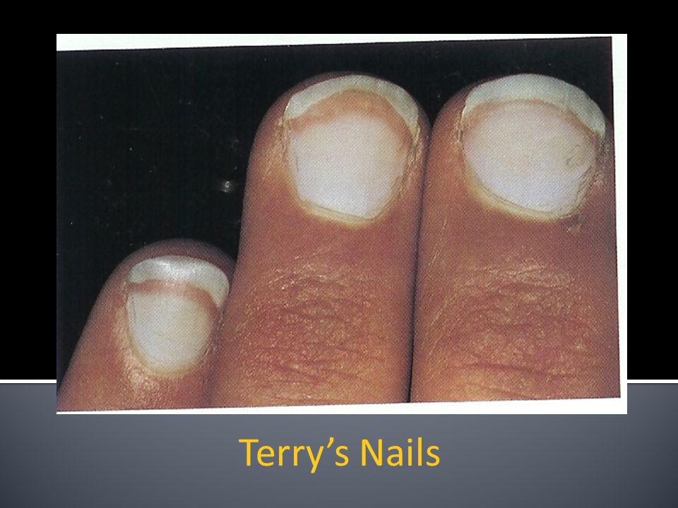 Terry's Nails