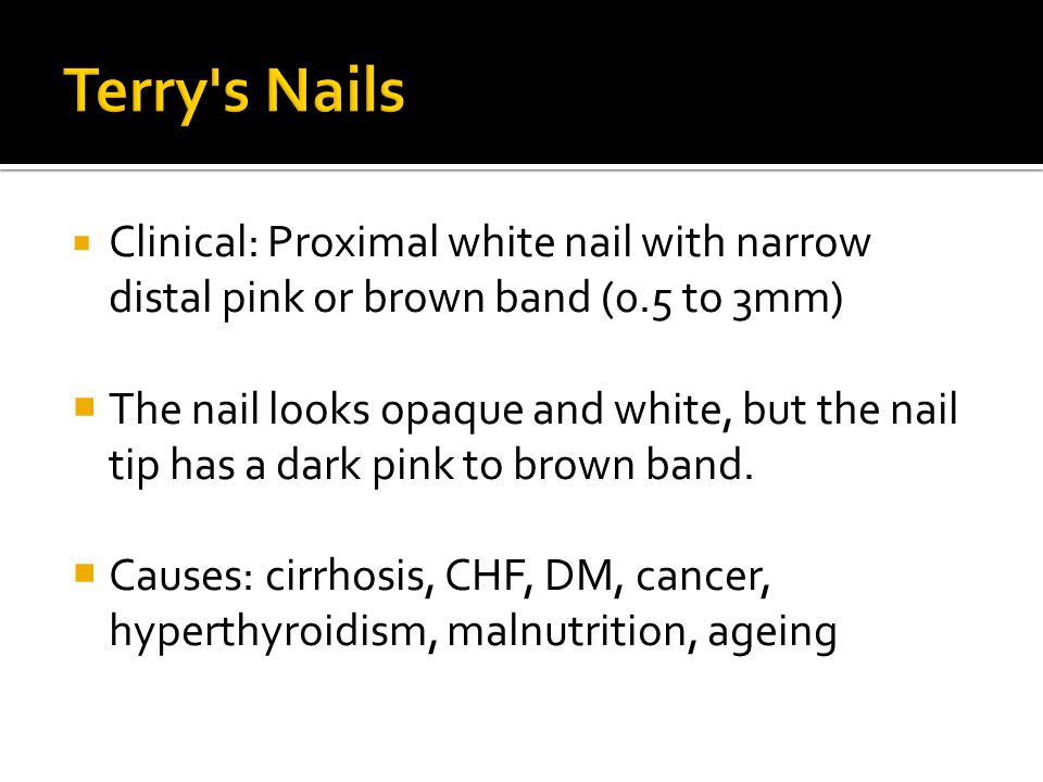 Terry s Nails Clinical: Proximal white nail with narrow distal pink or brown band (0.5 to 3mm)