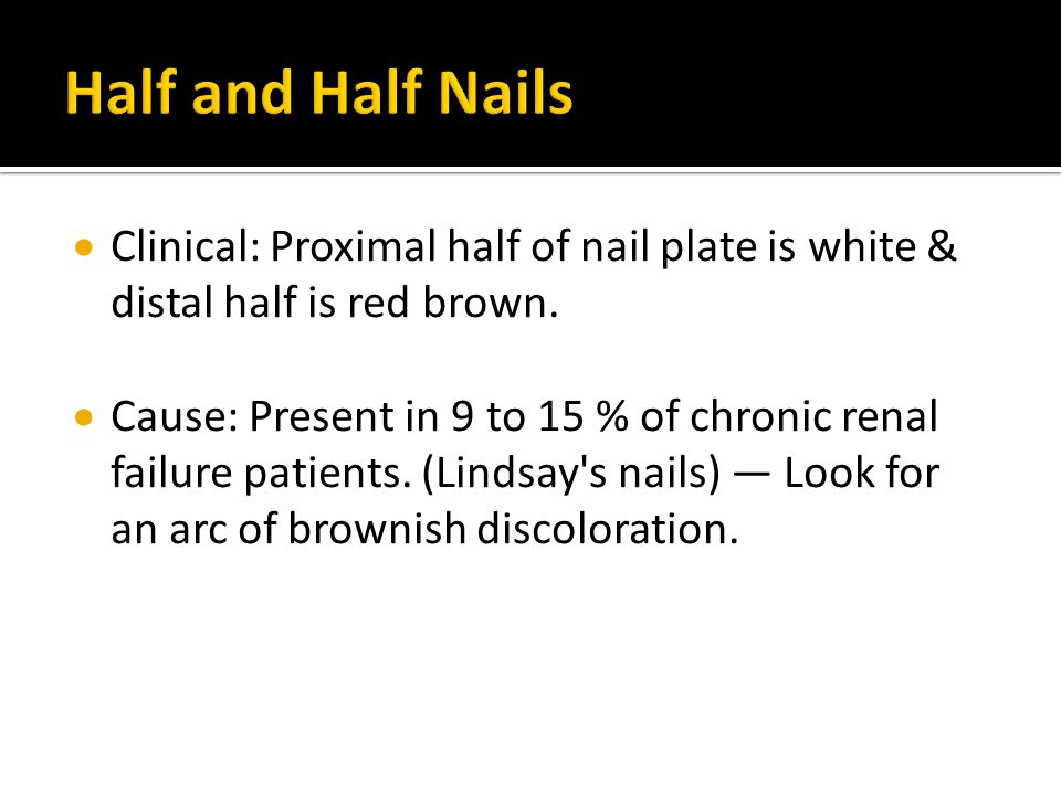 Half and Half Nails Clinical: Proximal half of nail plate is white & distal half is red brown.
