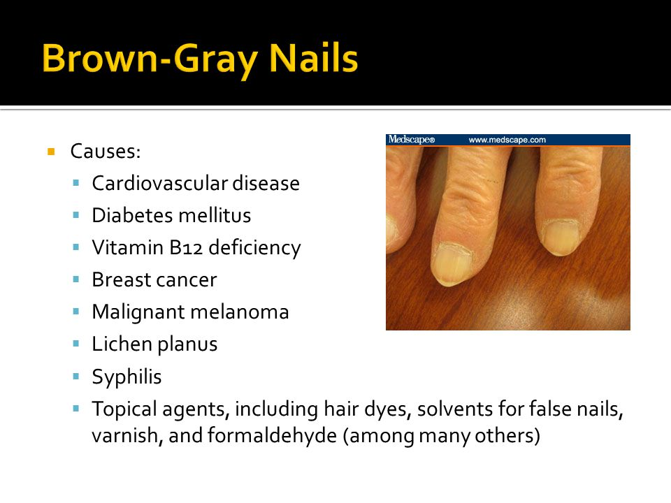 Brown-Gray Nails Causes: Cardiovascular disease Diabetes mellitus