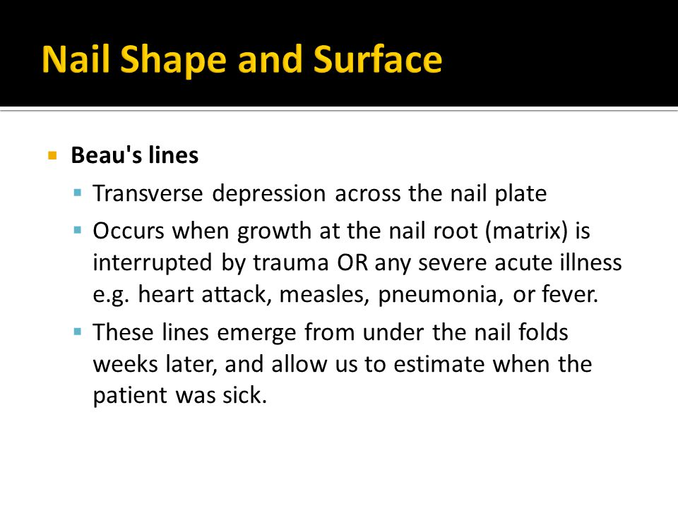 Nail Shape and Surface Beau s lines