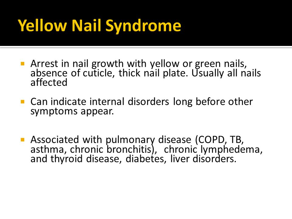 Yellow Nail Syndrome Arrest in nail growth with yellow or green nails, absence of cuticle, thick nail plate. Usually all nails affected.
