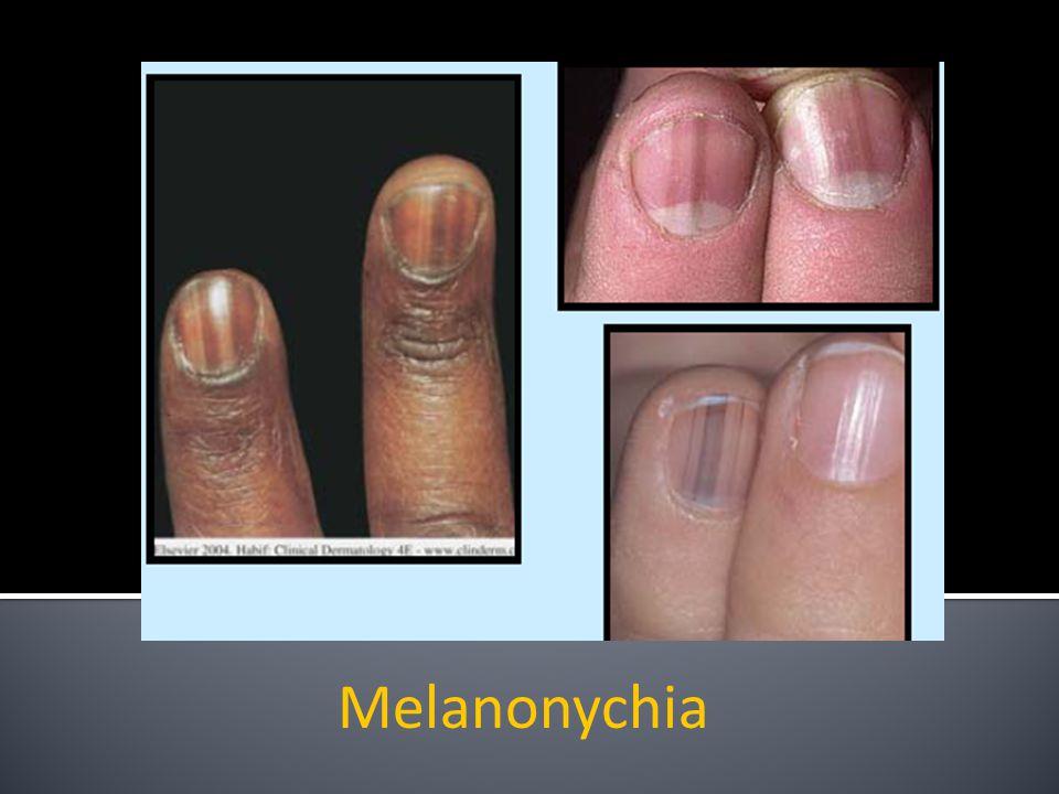 Melanonychia