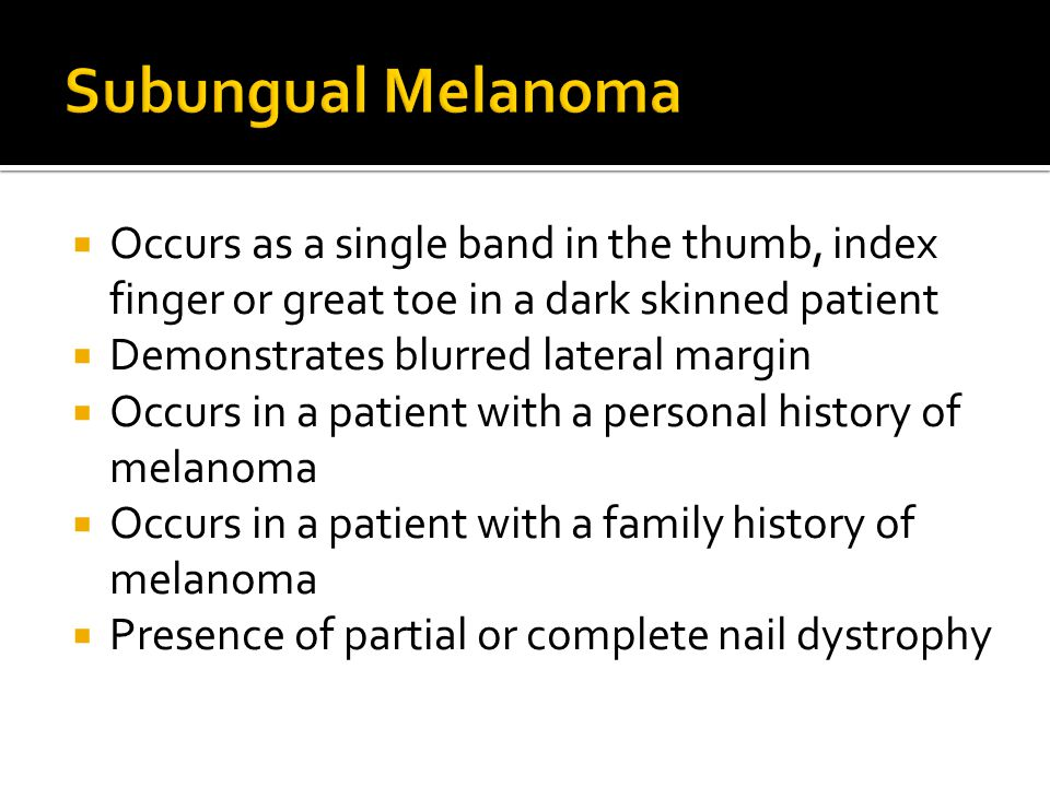 Subungual Melanoma Occurs as a single band in the thumb, index finger or great toe in a dark skinned patient.