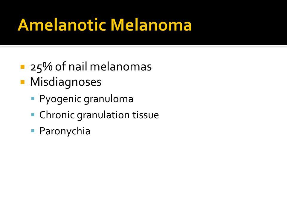 Amelanotic Melanoma 25% of nail melanomas Misdiagnoses