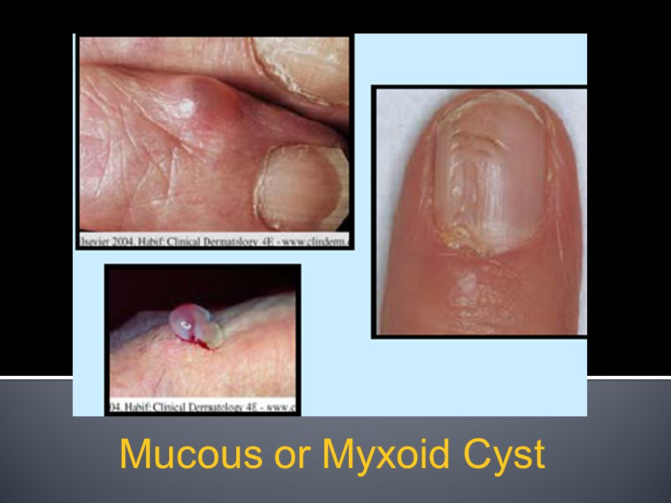 Mucous or Myxoid Cyst