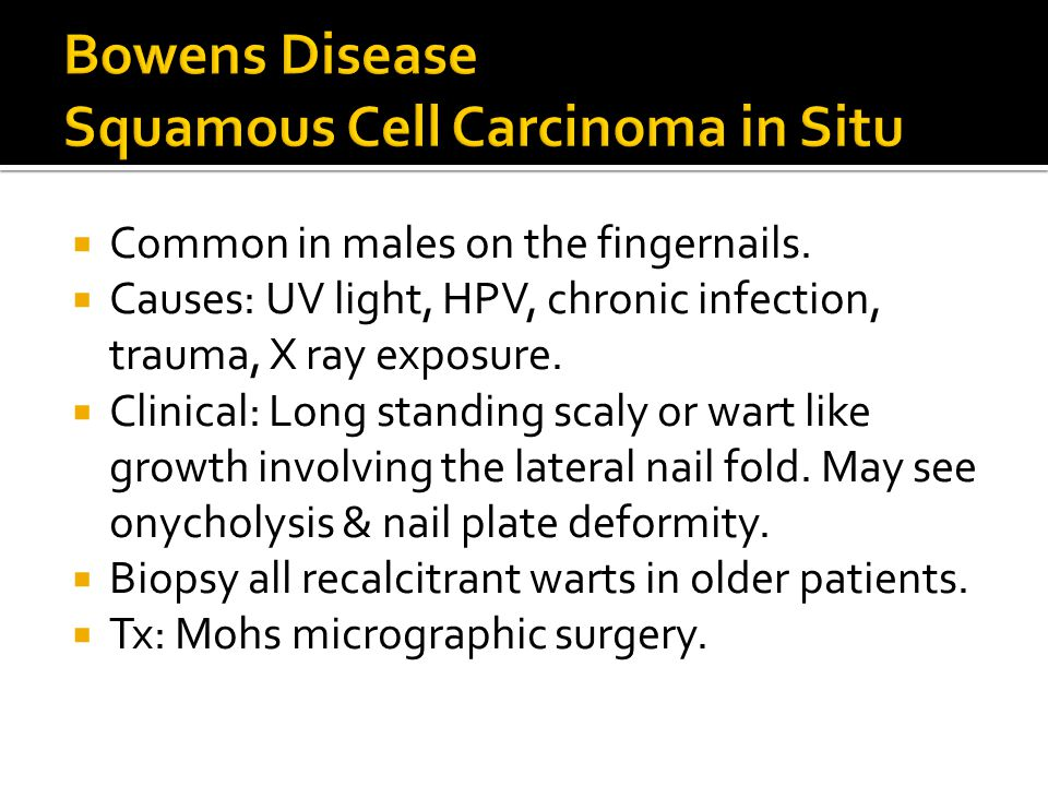 Bowens Disease Squamous Cell Carcinoma in Situ