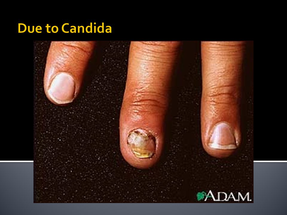 Due to Candida