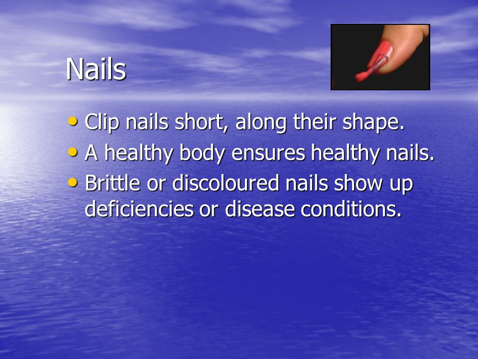 Nails Clip nails short, along their shape.