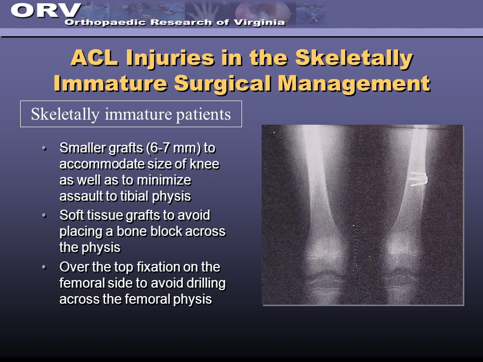 ACL Injuries in the Skeletally Immature Surgical Management