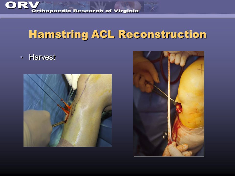 Hamstring ACL Reconstruction