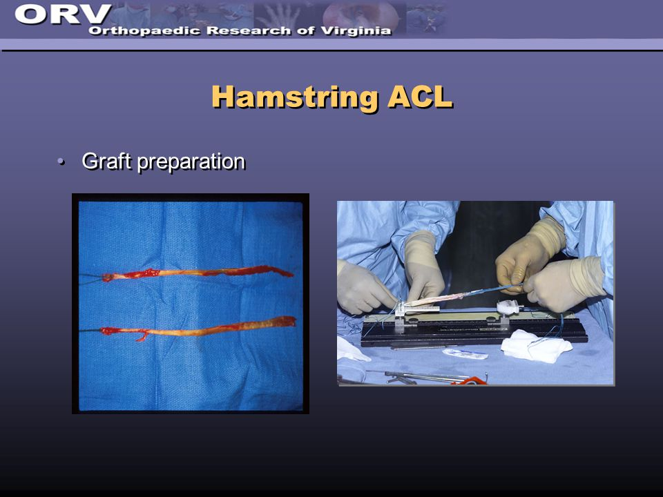 Hamstring ACL Graft preparation