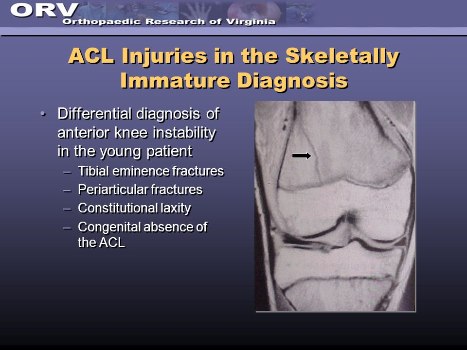 ACL Injuries in the Skeletally Immature Diagnosis