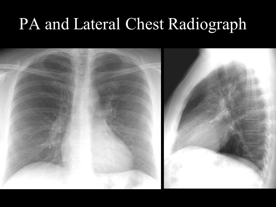 PA and Lateral Chest Radiograph